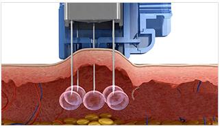 Mesotherapy Gun Injecting Dose
