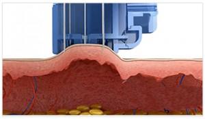 Mesotherapy Gun Vacuum Lifting Skin