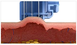 Mesotherapy Gun Vacuum Lifting